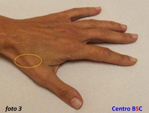 rizoartrosi-dorsale - Artrosi della mano