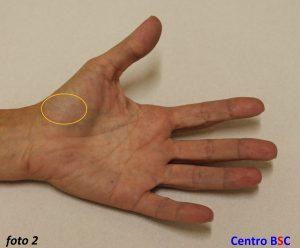 rizoartrosi-palmare - Artrosi della mano